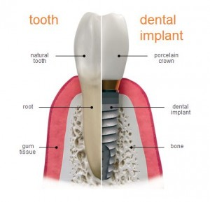 about-dental-implants